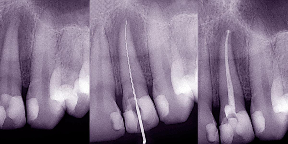 Wurzelbehandlungen beim Zahnarzt in Bozen, Südtirol. Moderne Endodontie bei Dr. Thomas Wächter mit elektronischer Messtechnik, besser und schneller als Röntgenbilder.