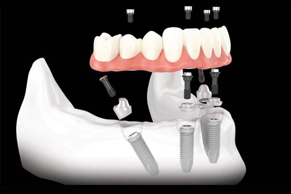 All on Four Prothetische Versorgung Rendering medico dentista Thomas Wächter