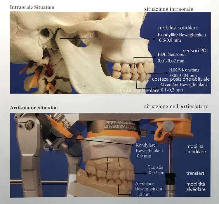 Okklusometrie Occlusometria Dr Thomas Waechter Zahnarzt Odontoiatria Bozen Bolzano