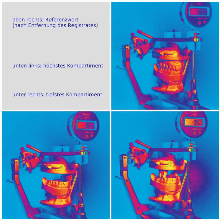 Okklusometrie Occlusometria Ger Collage Dr Thomas Waechter Zahnarzt Odontoiatra Bozen Bolzano