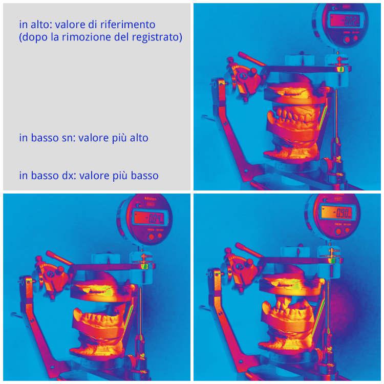 Okklusometrie Occlusometria Ita Collage Dr Thomas Waechter Zahnarzt Odontoiatra Bozen Bolzano